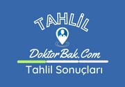 Dr. Ali Kemal Belviranlı Kadın Doğum ve Çocuk Hastalıkları Hastanesi Tahlil Laboratuvar Sonuçları